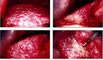 diseases liver jaundice cancer