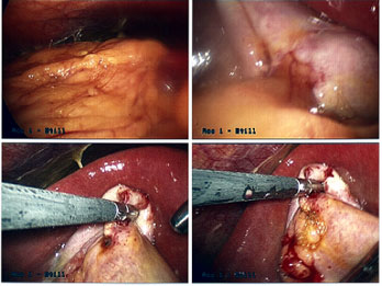 Perforated Gall Bladder