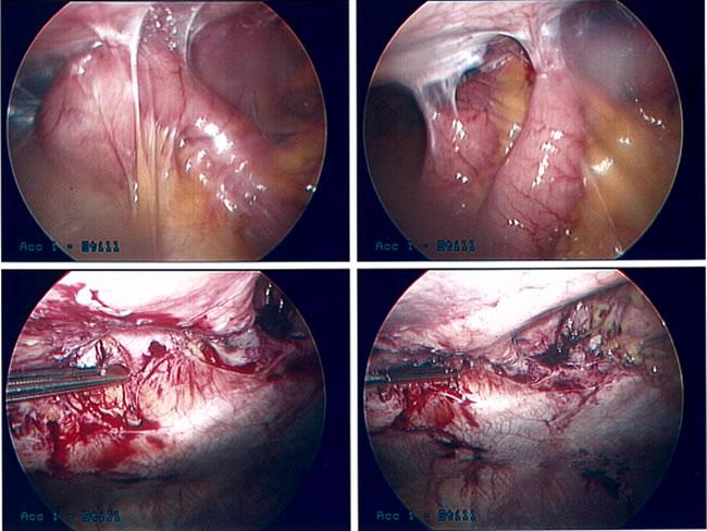 Intestinal Adhesions Infinity Surgical Associates